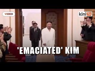 Kim Jong Un loses weight, North Koreans 'worried'