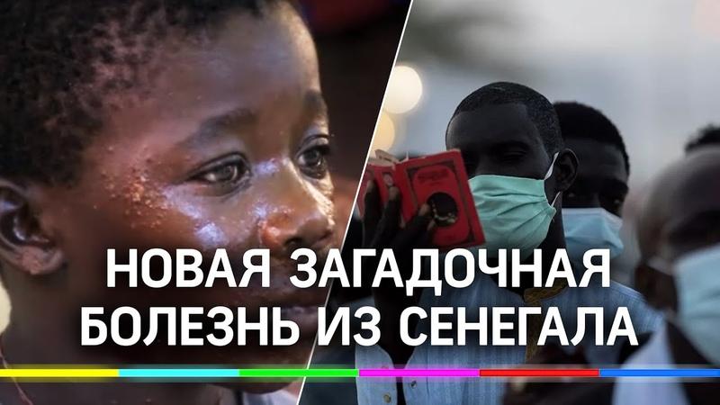 Новая загадочная болезнь из Сенегала сотни рыбаков покрылись волдырями, выход в море запрещён