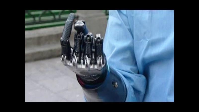 Человек киборг приехал в Москву Бионическая рука