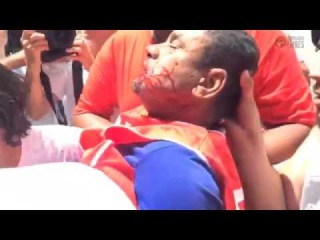 Manifestantes anti-Lula agridem dirigente da CUT Nacional.