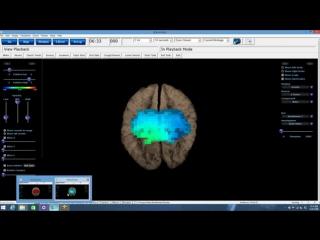 Review of Access Bars by Neuroscientist Dr. Jeffrey L. Fannin