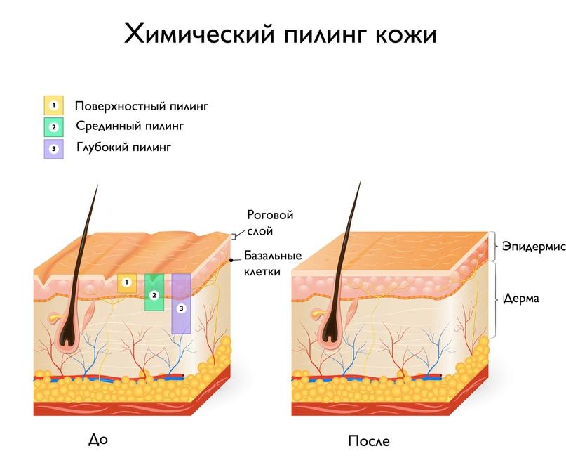 SPA - маникюр. Технология выполнения., изображение №4