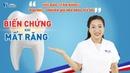 Biến chứng nguy hại khi mất răng không trồng lại?
