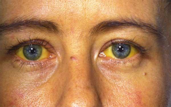 Какие существуют виды лекарств от гепатита В?