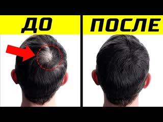 tophype 10 Способов Как Улучшить Рост Волос