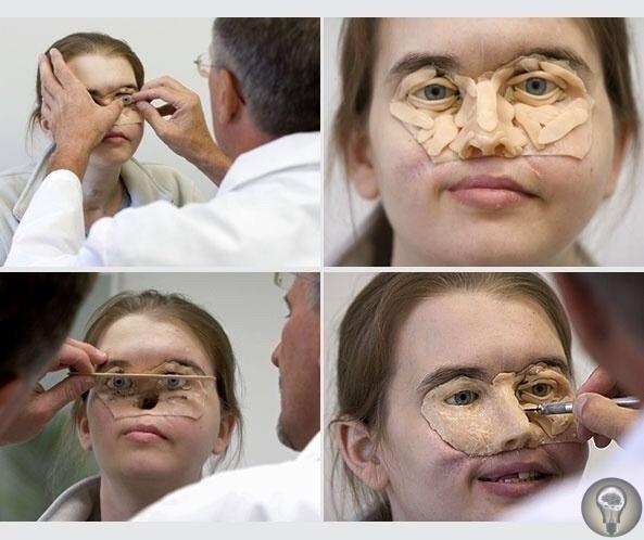 Крисси Стелц Орегон было всего 16 лет, когда ей выстрелили в лицо из дробовика Взрыв уничтожил ее глаза и нос. Одиннадцать лет спустя хирурги создали протез лица, чтобы скрыть ее травмы. На