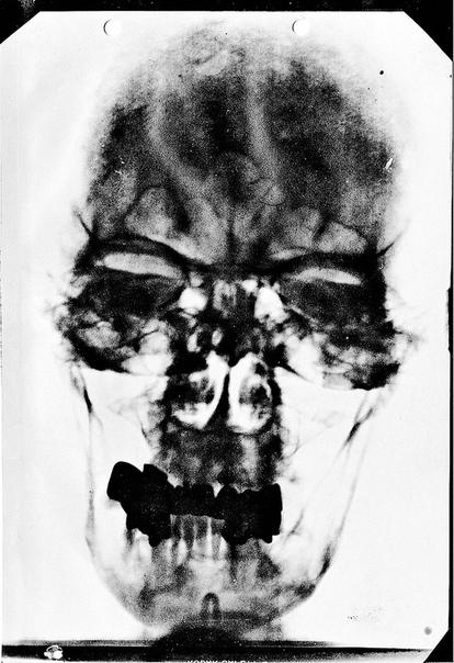 Рентгеновский снимок Адольфа Гитлера, 1944 год.