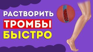 ЭТИ продукты БЫСТРО растворяют ТРОМБЫ в сосудах  Тромбоэмболия, варикоз, профилактика тромбоза