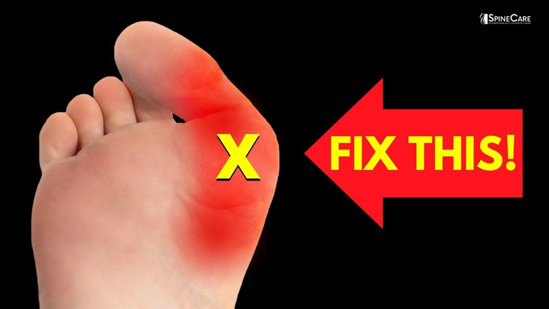 How to Relieve Bunion Pain at Home NO EQUIPMENT